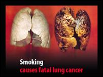 antismoking2.jpg